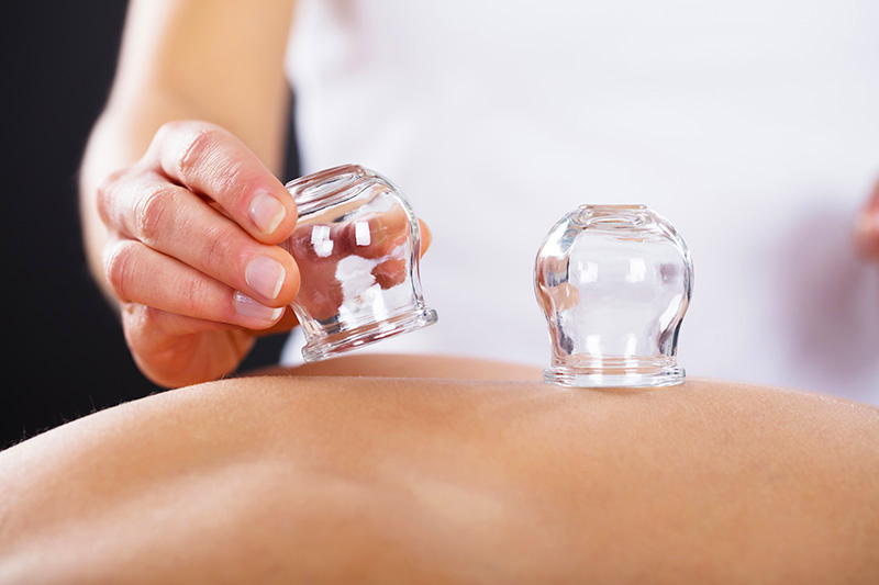 The Advantages of Cupping