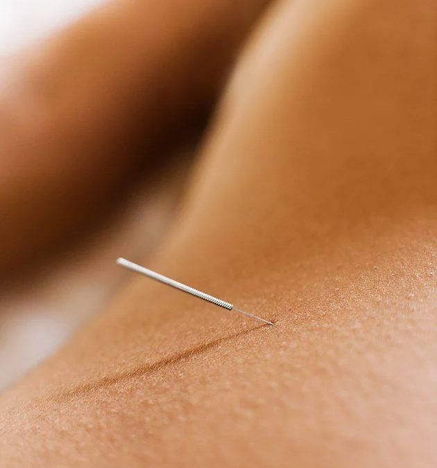 What is Esoteric Acupuncture?