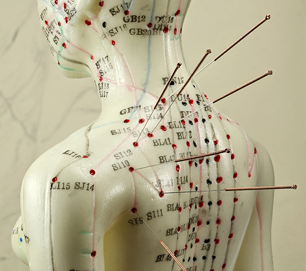 Balance Your Body, Mind, and Spirit with Acupuncture Therapy