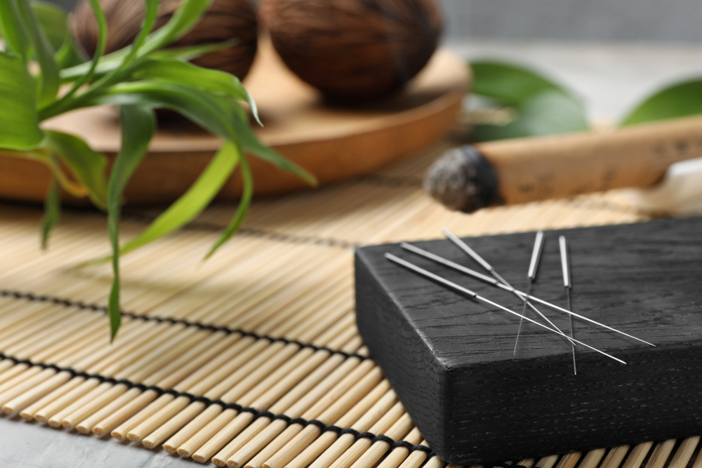 Acupuncture for Self-Healing Treatments